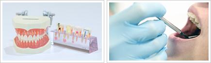 予防を重視した歯科メンテナンス