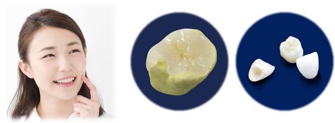 審美歯科治療イメージ